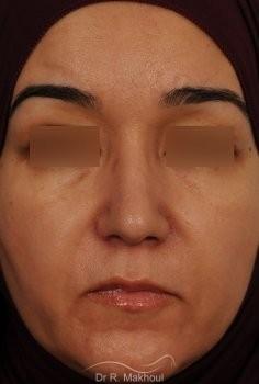 Rhinoplastieultrasonique primaire vue de face apres