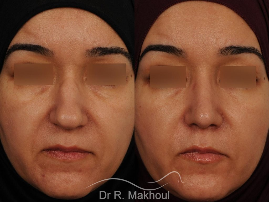 Rhinoplastieultrasonique primaire vue de face avant-apres