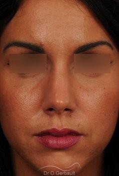 Rhinoplastie sur peau épaisse, nez trop fort et masculin vue de face apres