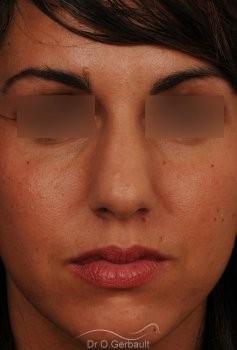 Rhinoplastie sur peau épaisse, nez trop fort et masculin vue de face avant