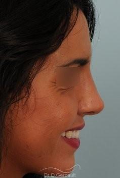 Rhinoplastie sur peau épaisse, nez trop fort et masculin vue de profil apres