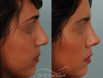 Rhinoplastie sur peau épaisse, nez trop fort et masculin vue de profil avant-apres