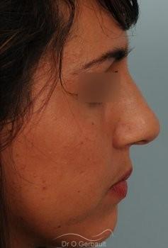 Rhinoplastie sur peau épaisse, nez trop fort et masculin vue de profil avant