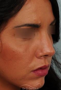 Rhinoplastie sur peau épaisse, nez trop fort et masculin vue de quart apres