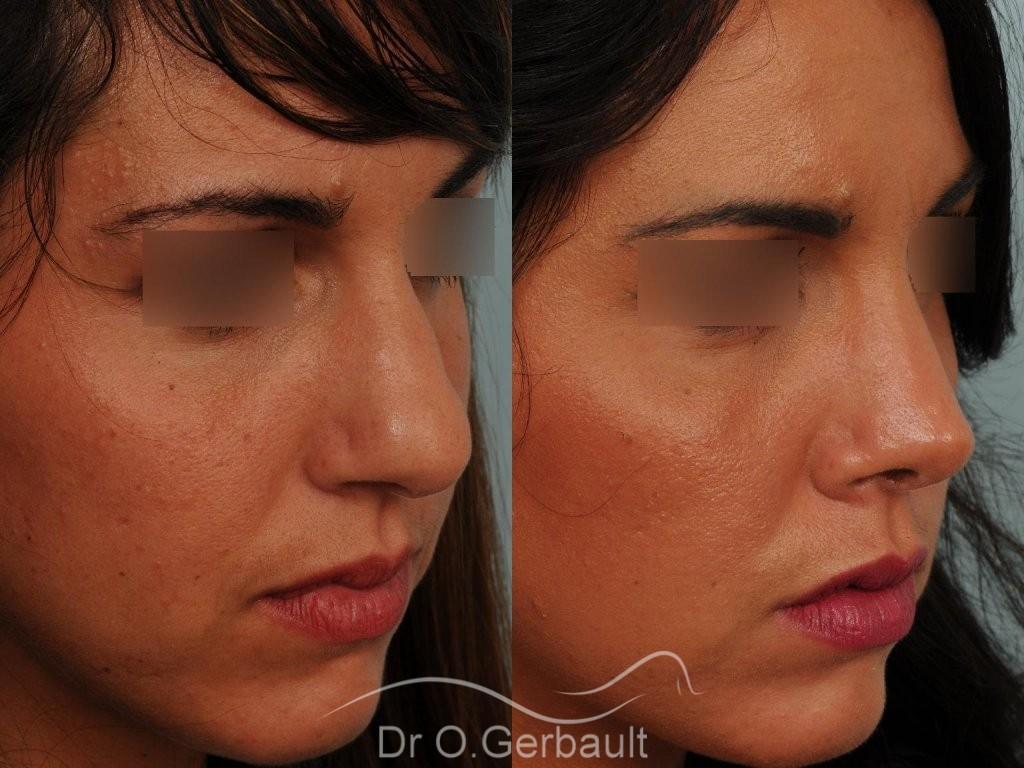 Rhinoplastie sur peau épaisse, nez trop fort et masculin vue de quart avant-apres