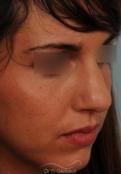 Rhinoplastie sur peau épaisse, nez trop fort et masculin vue de quart avant