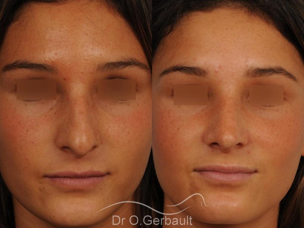 Nez masculin et pointe tombante vue de face avant-apres