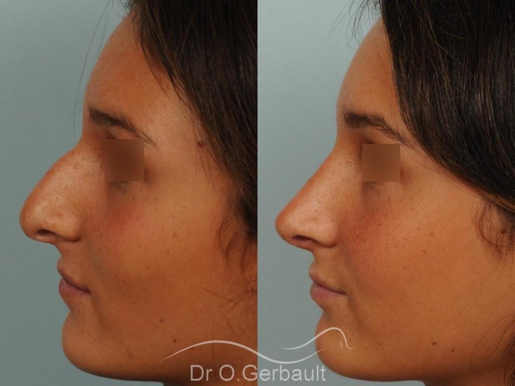 Nez masculin et pointe tombante vue de profil avant-apres