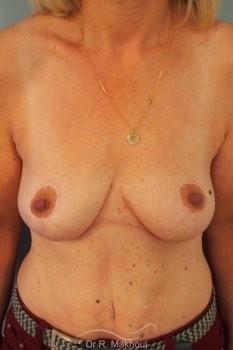 Ptôse des seins vue de face apres
