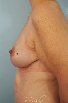 Ptôse des seins vue de profil apres