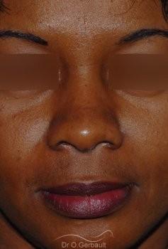 Affinement ailes de nez Ethnique vue de face apres