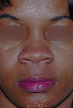 Affinement ailes de nez Ethnique vue de face avant