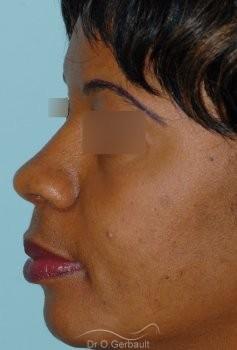 Affinement ailes de nez Ethnique vue de profil apres