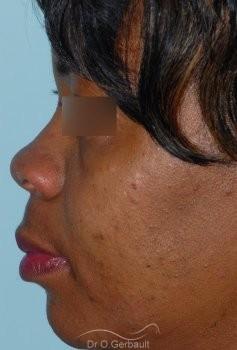 Affinement ailes de nez Ethnique vue de profil avant