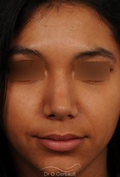 Affinement d'un nez Ethnique vue de face apres