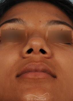 Affinement d'un nez Ethnique vue de face avant