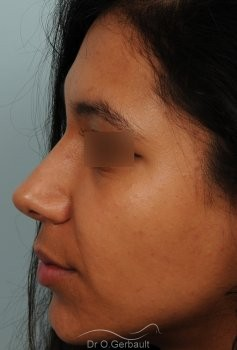 Affinement d'un nez Ethnique vue de profil apres