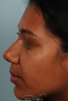Affinement d'un nez Ethnique vue de profil avant