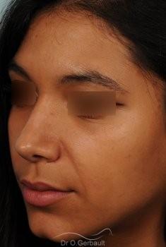 Affinement d'un nez Ethnique vue de quart apres
