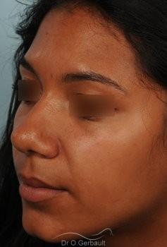 Affinement d'un nez Ethnique vue de quart avant