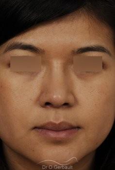 Ailes de nez larges et pointe ronde vue de face apres