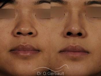 Ailes de nez larges et pointe ronde vue de face avant-apres