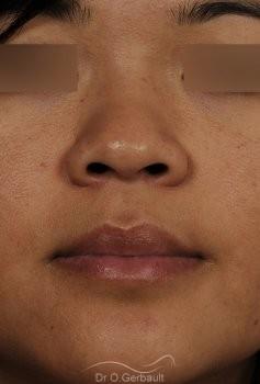 Ailes de nez larges et pointe ronde vue de face avant