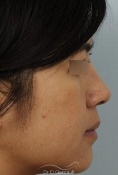 Ailes de nez larges et pointe ronde vue de profil apres