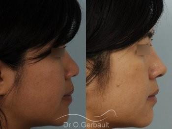 Ailes de nez larges et pointe ronde vue de profil avant-apres