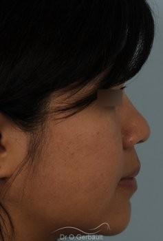 Ailes de nez larges et pointe ronde vue de profil avant