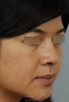 Ailes de nez larges et pointe ronde vue de quart apres