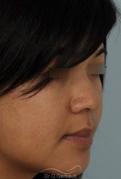 Ailes de nez larges et pointe ronde vue de quart avant