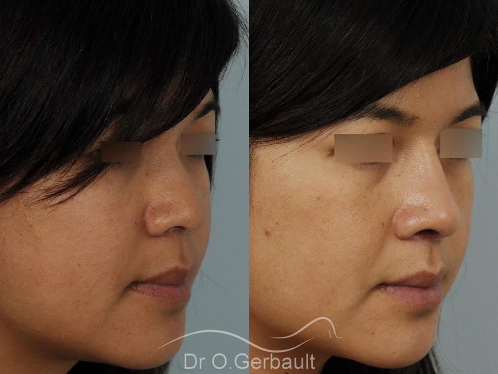 Ailes de nez larges et pointe ronde vue de quart avant-apres