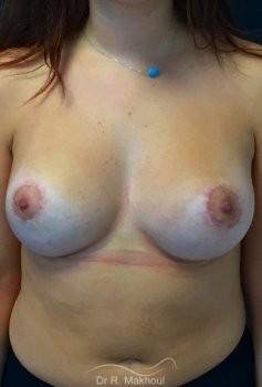 Augmentation mammaire et correction seins tubéreux vue de face apres