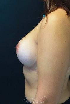 Augmentation mammaire et correction seins tubéreux vue de profil apres