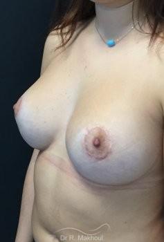 Augmentation mammaire et correction seins tubéreux vue de quart apres