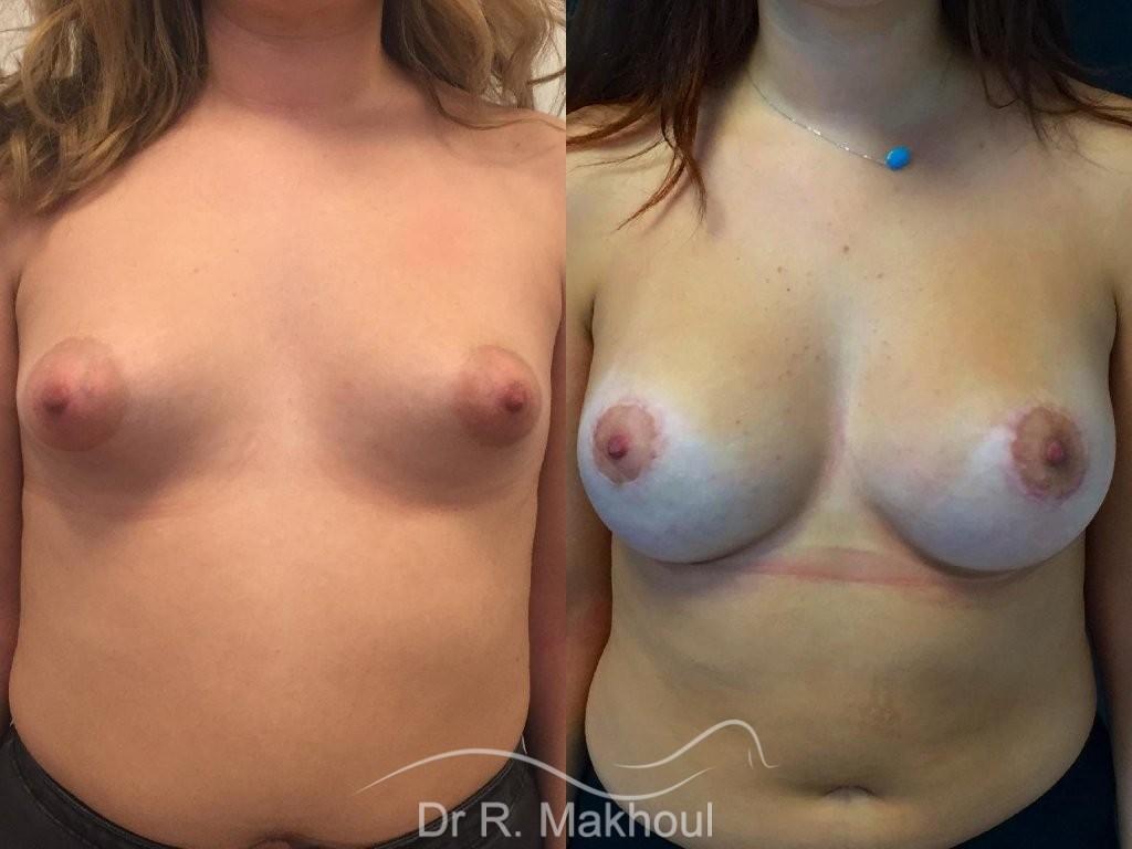 Augmentation mammaire et correction seins tubéreux vue de face duo