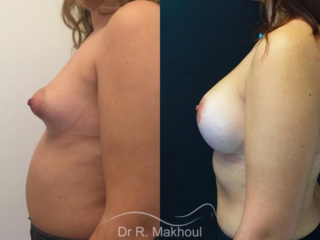 Augmentation mammaire et correction seins tubéreux vue de profil duo