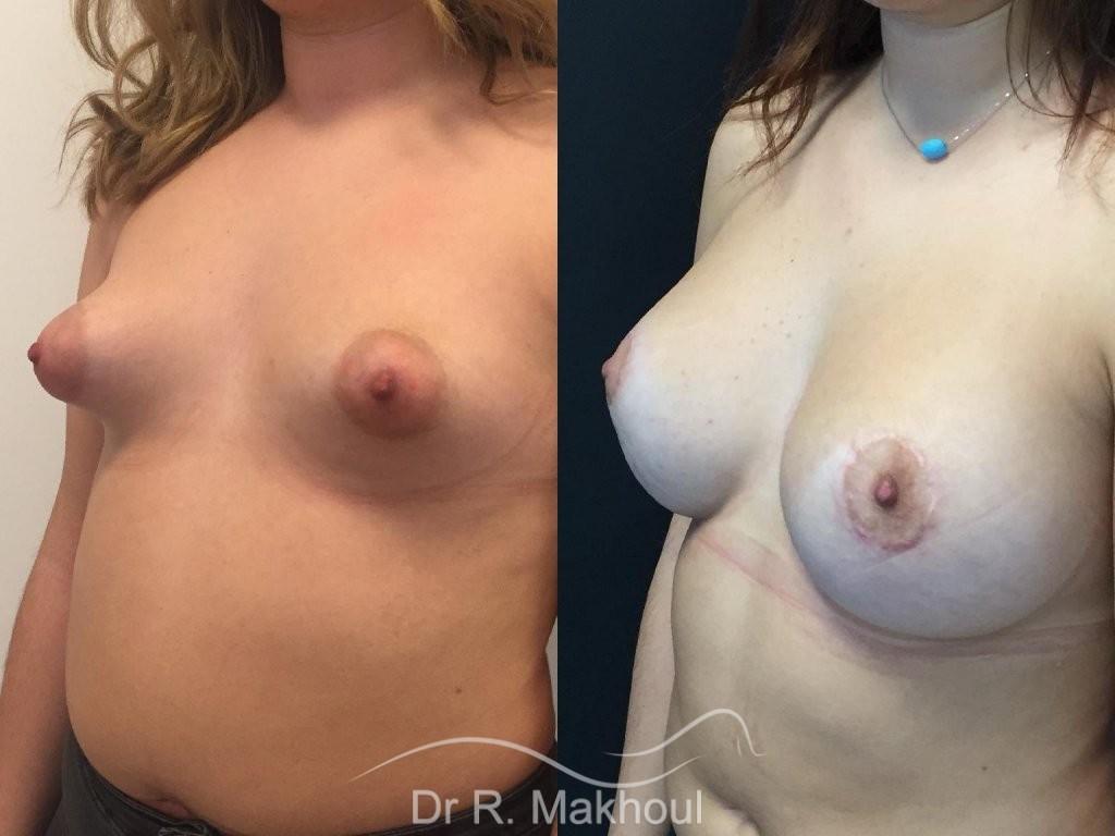 Augmentation mammaire et correction seins tubéreux vue de quart duo