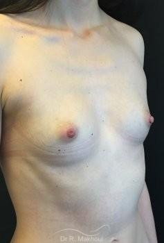 Augmentation mammaire par prothèses vue de quart avant