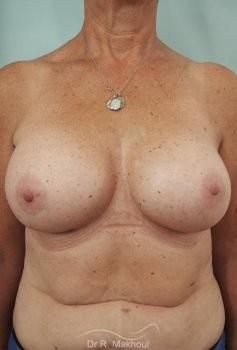 Augmentation mammaire par prothèses vue de face apres