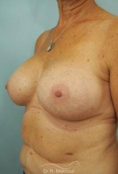 Augmentation mammaire par prothèses vue de quart apres