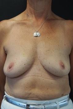 Augmentation mammaire par prothèses vue de face avant