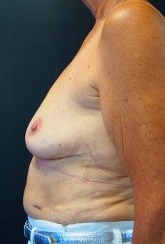 Augmentation mammaire par prothèses vue de profil avant