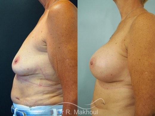 Augmentation mammaire par prothèses vue de profil duo