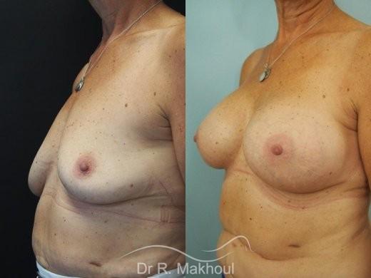 Augmentation mammaire par prothèses vue de quart duo