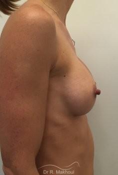 Augmentation mammaire par prothèses vue de profil apres
