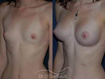 Augmentation mammaire par prothèses vue de face duo
