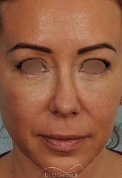 Blépharoplastie avec lipofilling vue de face apres
