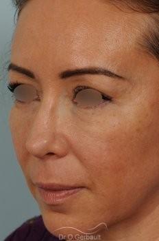 Blépharoplastie avec lipofilling vue de quart apres